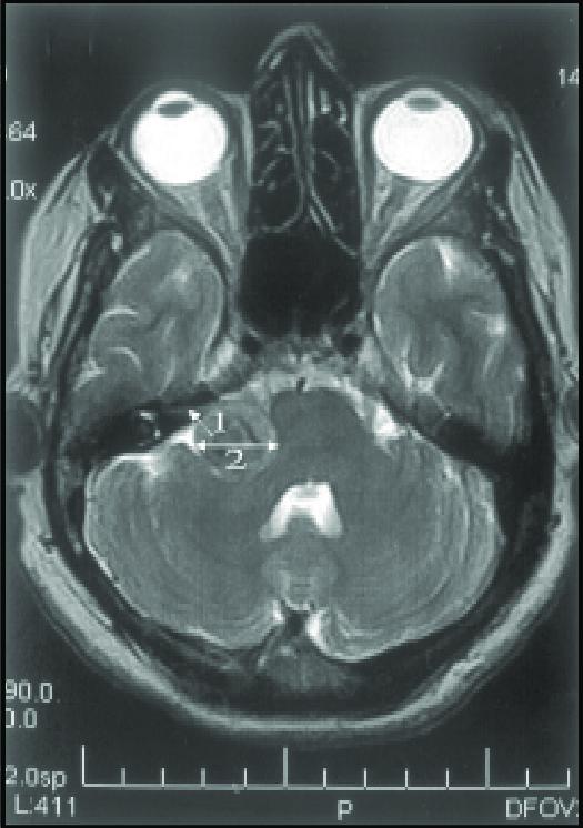 Esta imagem tem um texto alternativo em branco, o nome da imagem é MRI-Showing-intracannalicular-extention-of-Acoustic-neuroma.png